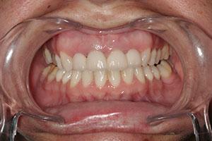 Implantes dentales - Esprohident Clínica Dental en Jerez de la Frontera, Cádiz y Chiclana