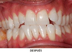 Estética Dental - Esprohident Clínica Dental en Jerez de la Frontera, Cádiz y Chiclana