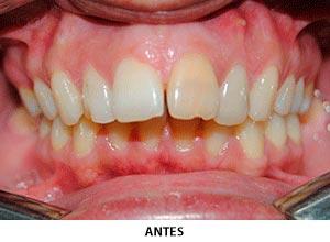 Ortodoncia - Esprohident Clínica Dental en Jerez de la Frontera, Cádiz y Chiclana