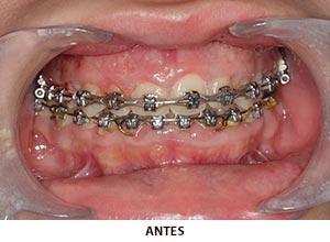 Periodoncia - Esprohident Clínica Dental en Jerez de la Frontera, Cádiz y Chiclana
