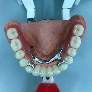 Prótesis dental - Esprohident Clínica Dental en Jerez de la Frontera, Cádiz y Chiclana