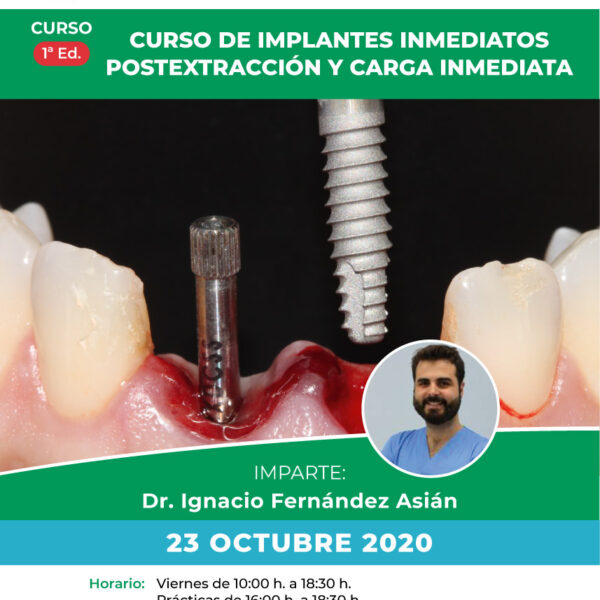 Cartel Implantes inmediatos