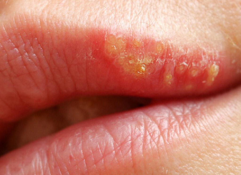 detalle herpes labial