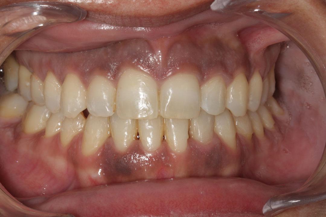 antes melanosis gingival