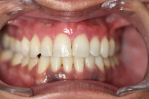 DESPUES MELANOSIS GINGIVAL